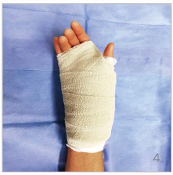 hypermobiele duim HandsOnCare